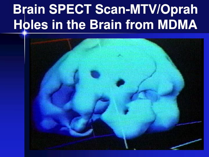 oprah brain scan